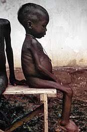 Photo d'un enfant atteint de Kwashiorkor