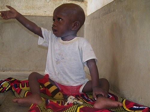 Image d'un enfant qui a retrouver la santé après 26jours d'alimentation à la spiruline