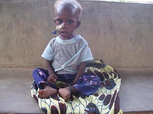 Photo du même enfant après 11 jour d'alimentation à la spiruline